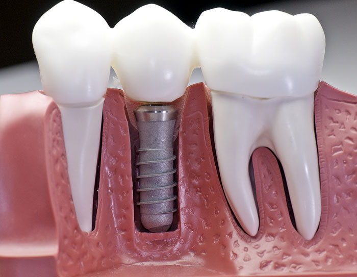 Dental Implants – Why You Need Them