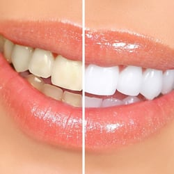 Do you want a beautiful, white smile?